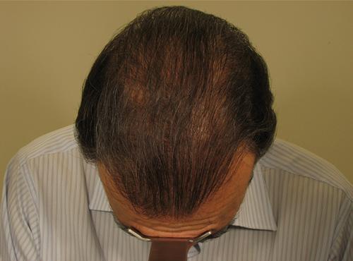 Hombre después de realizarse un injerto capilar
