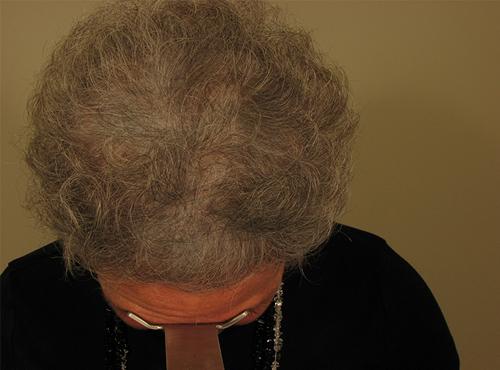Mujer después de realizarse un injerto capilar